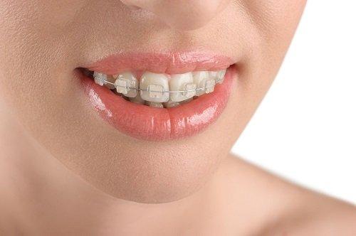 Chi phí niềng răng hô hàm trên bao nhiêu tiền? 1